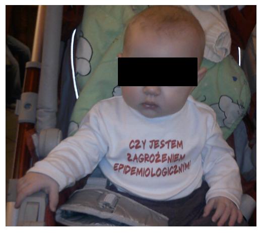 Dziecko Zagrozenie Epidemiologiczne